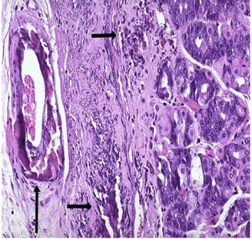 Pathological calcification