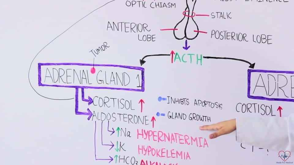 Adrenal gland tumors