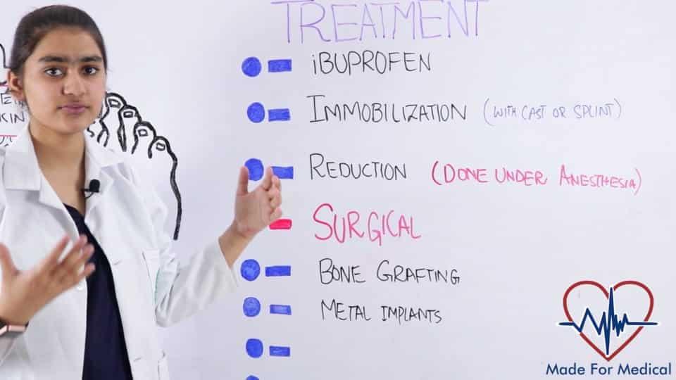 Treatment of Bone Fractures